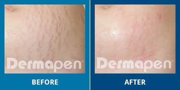 dermapen before and after
