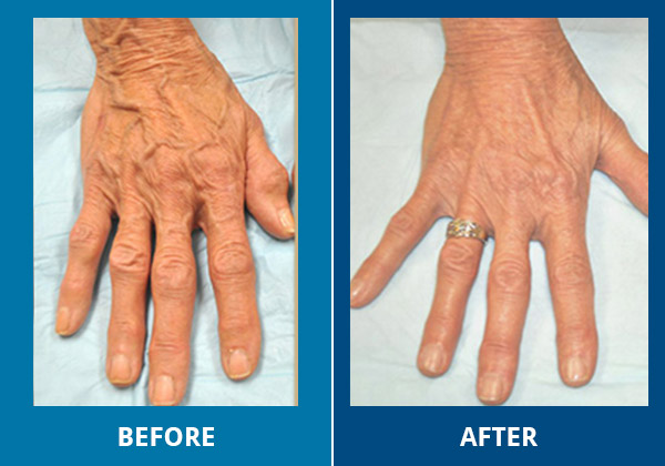 hands before and after
