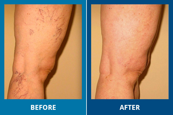 vein gogh before and after