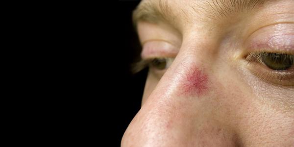 Laser facial spider veins — photo 1