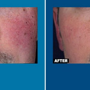 vbeam laser before and after
