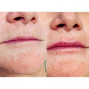 Face Lip Before and After