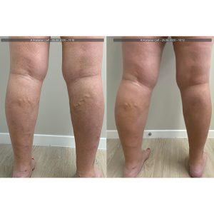 vein-gallery-legs-8